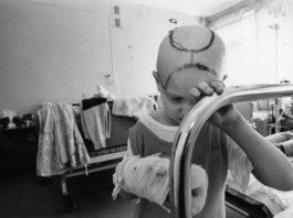 Онкологическая заболеваемость в Беларуси после аварии на ЧАЭС