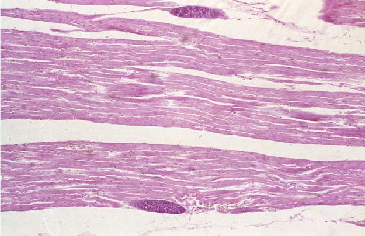 Рисунок 3. — Умеренно выраженный склероз стромы, участки фрагментации и пересокращений мышечных волокон