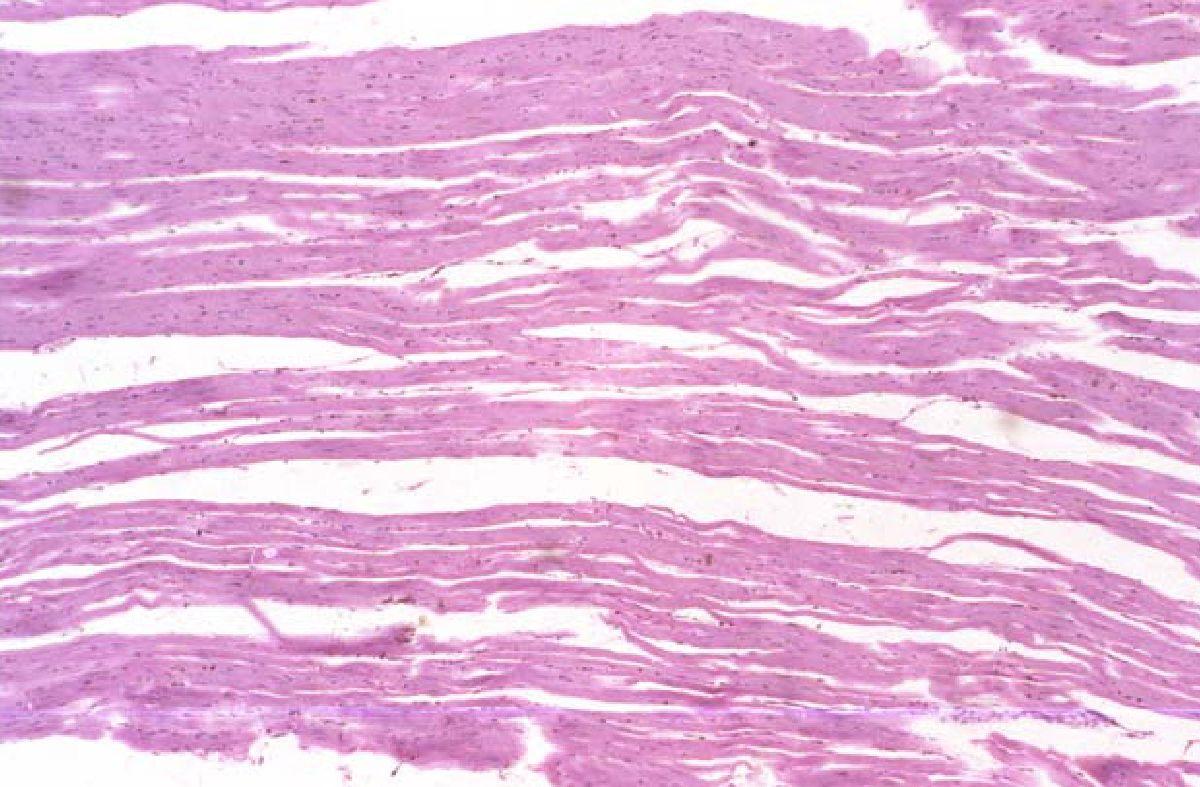 Рисунок 4 — Умеренно выраженный стромальный отек миокарда