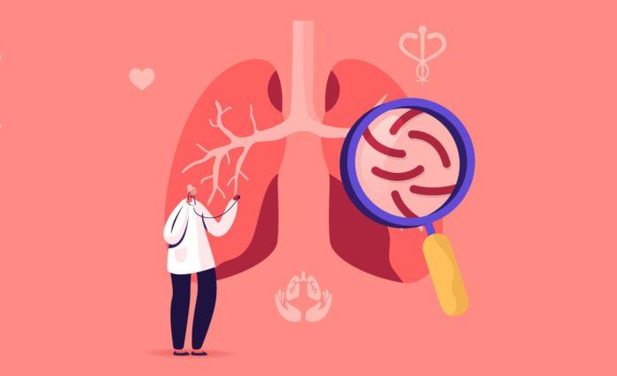 Динамика заболеваемости туберкулезом легких молодых женщин в Гомельской области